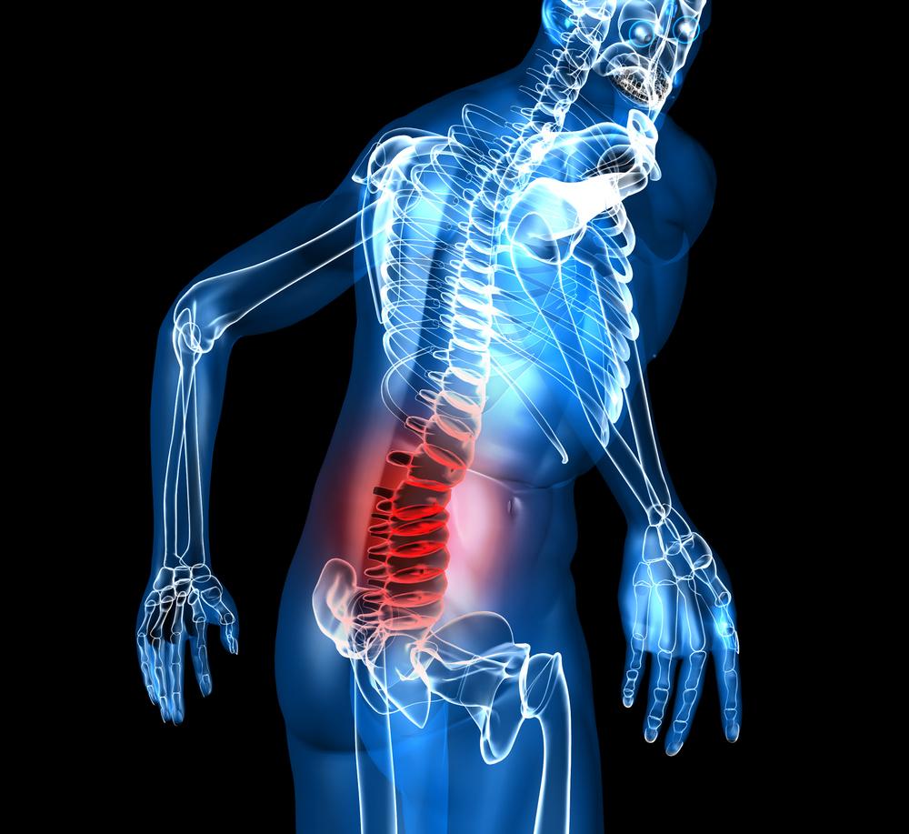 back pain.jpg