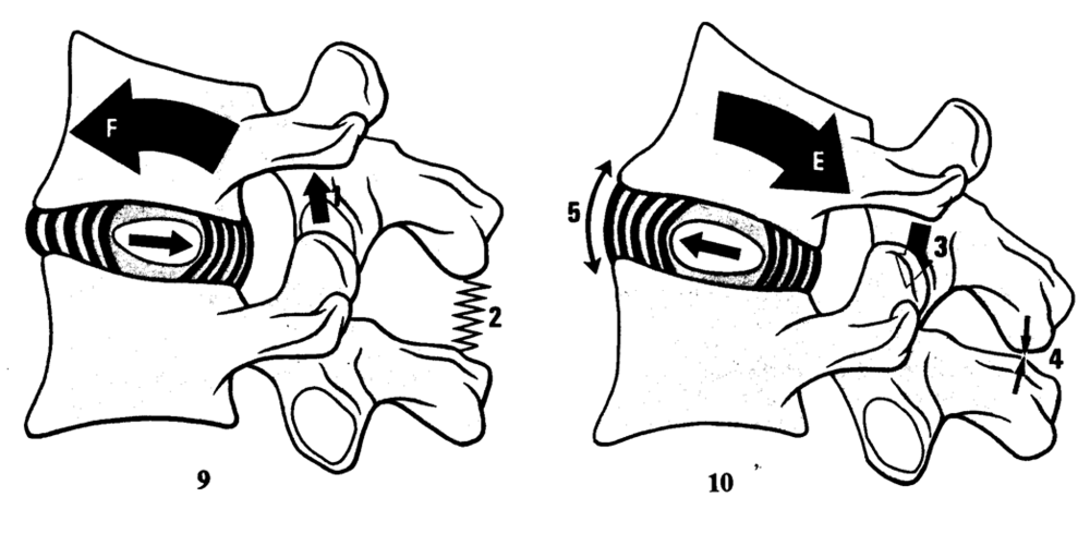 Figure 6. Flexion of the cervical spine results in a displacement of the nucleus pulposus in an anterior to posterior direction, with extension resulting in a posterior to anterior displacement with extension.