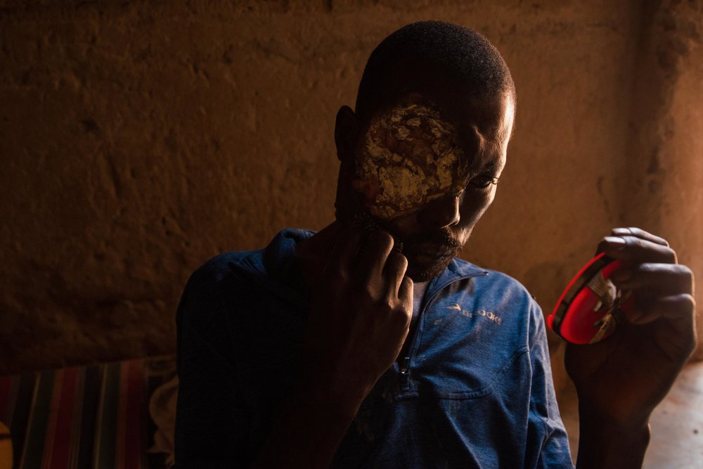 "Musa Gali wipes his face, which is partially covered with a large, cancerous tumor, during our final interview in November 2017.  The 46-year-old farmer and father of seven was diagnosed with ocular cancer, a potentially treatable condition in Uganda, at least, until the country's only radiotherapy machine broke down in April 2016. There was no hope of saving him after.  ""I have a lot of pain because of the breakdown of the machine,"" he said, his voice growing more strained with every word. ""If they had replaced it, I would not be in this situation now. I would not be suffering."""