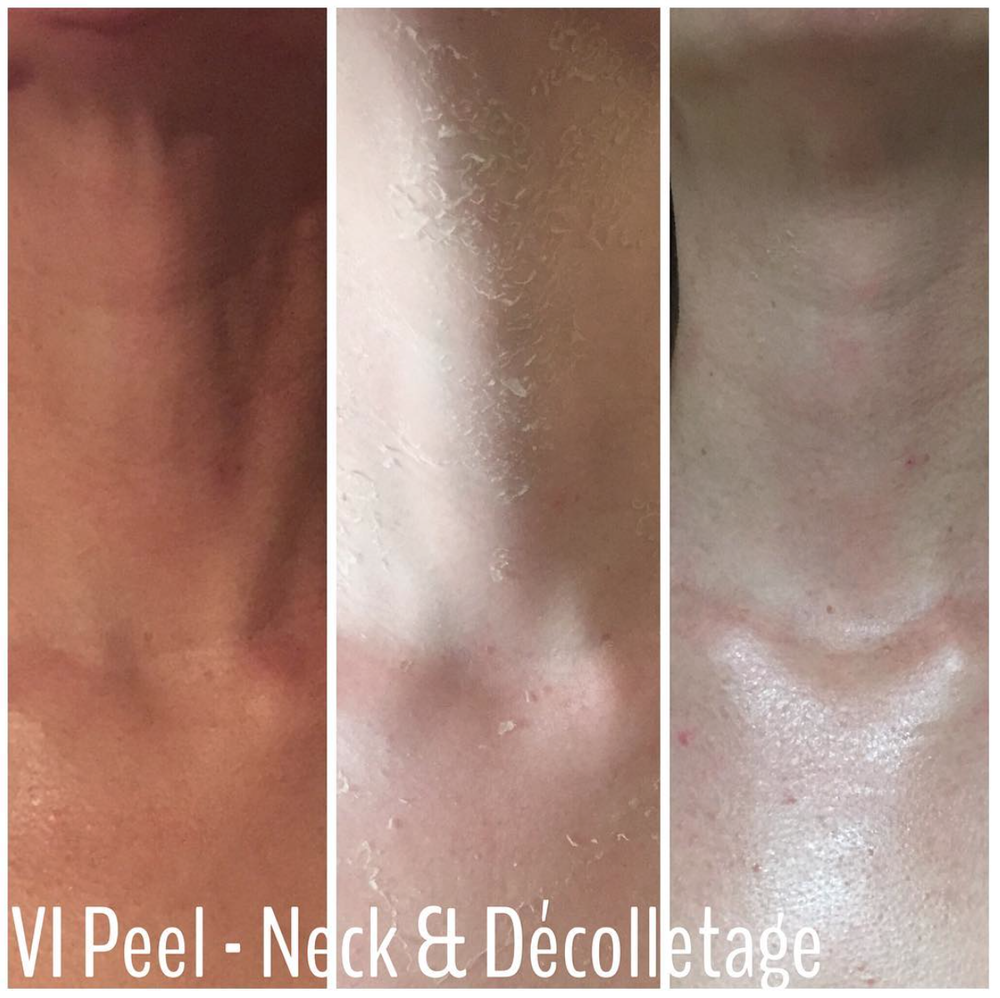 vipeel neck decolletage.png