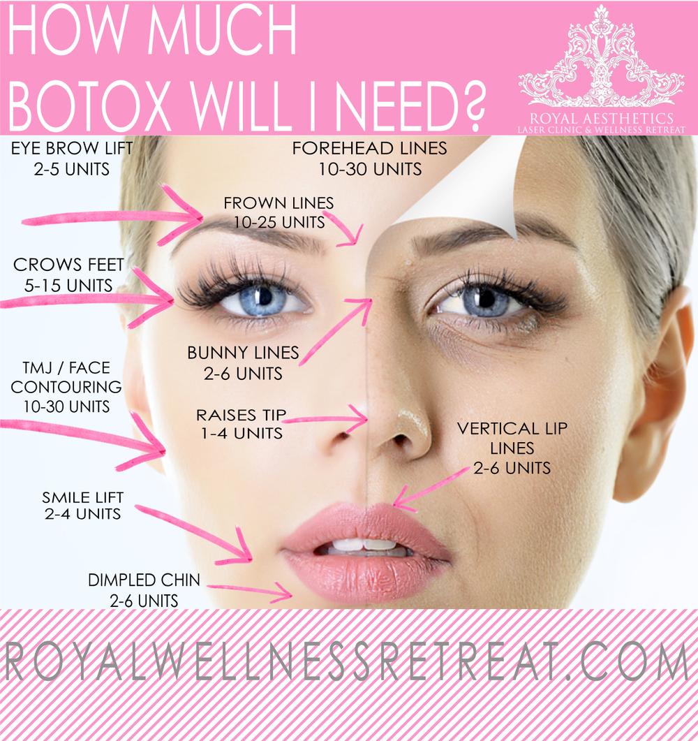 botox sites.png