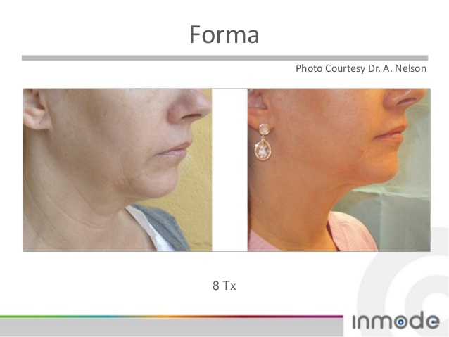Forma Skin Tightening Royal Aesthetics