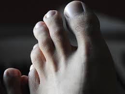 foot.jpeg