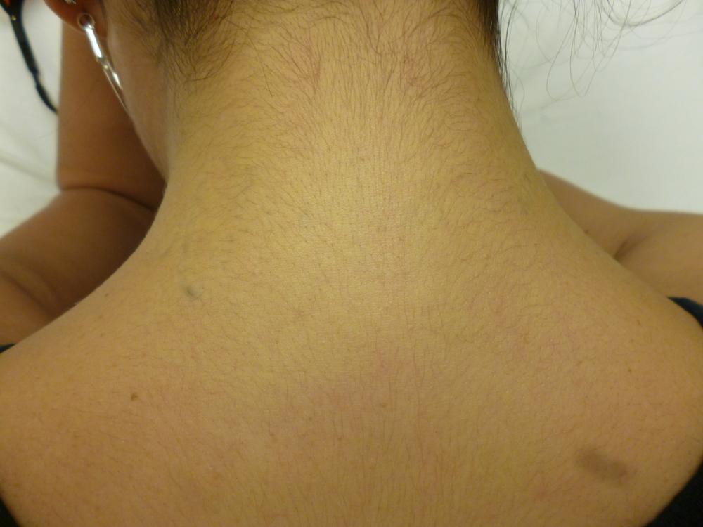 Acevedo. D. neck. 5.JPG