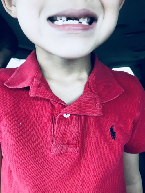 Superman's Toothless Smile
