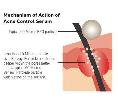 Mechanism of Action of Acne Control Serum.png