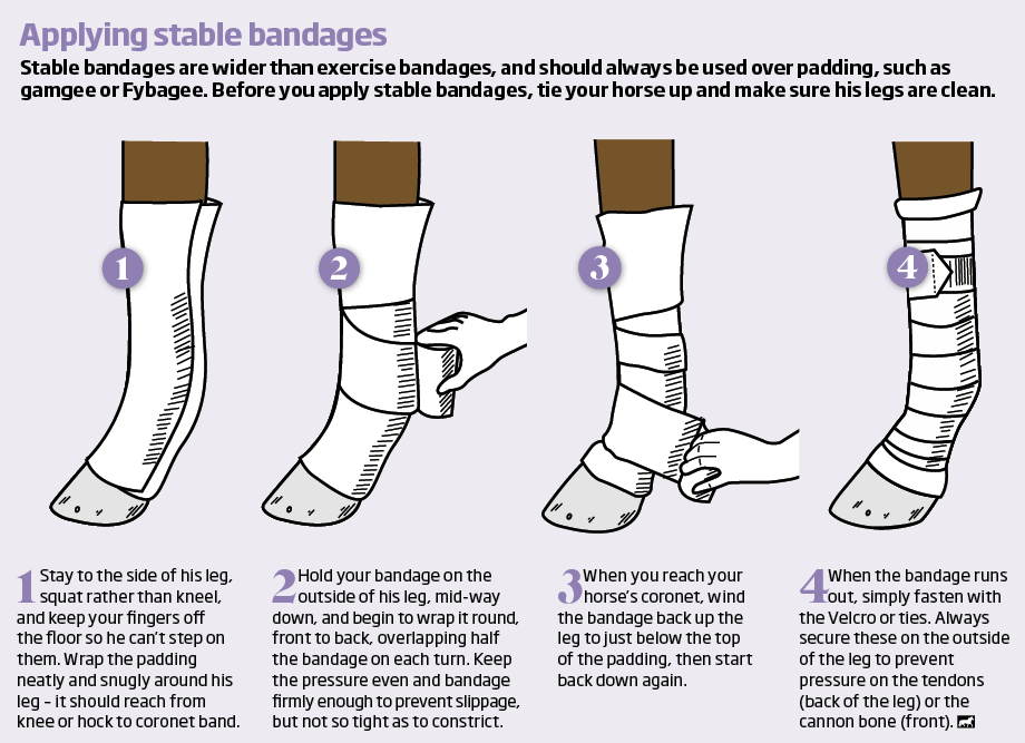 Applying stable bandages