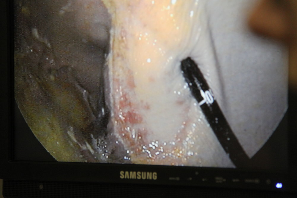 The fiberoptic camera picks up the internal image to detect whether the horse has ulcers,