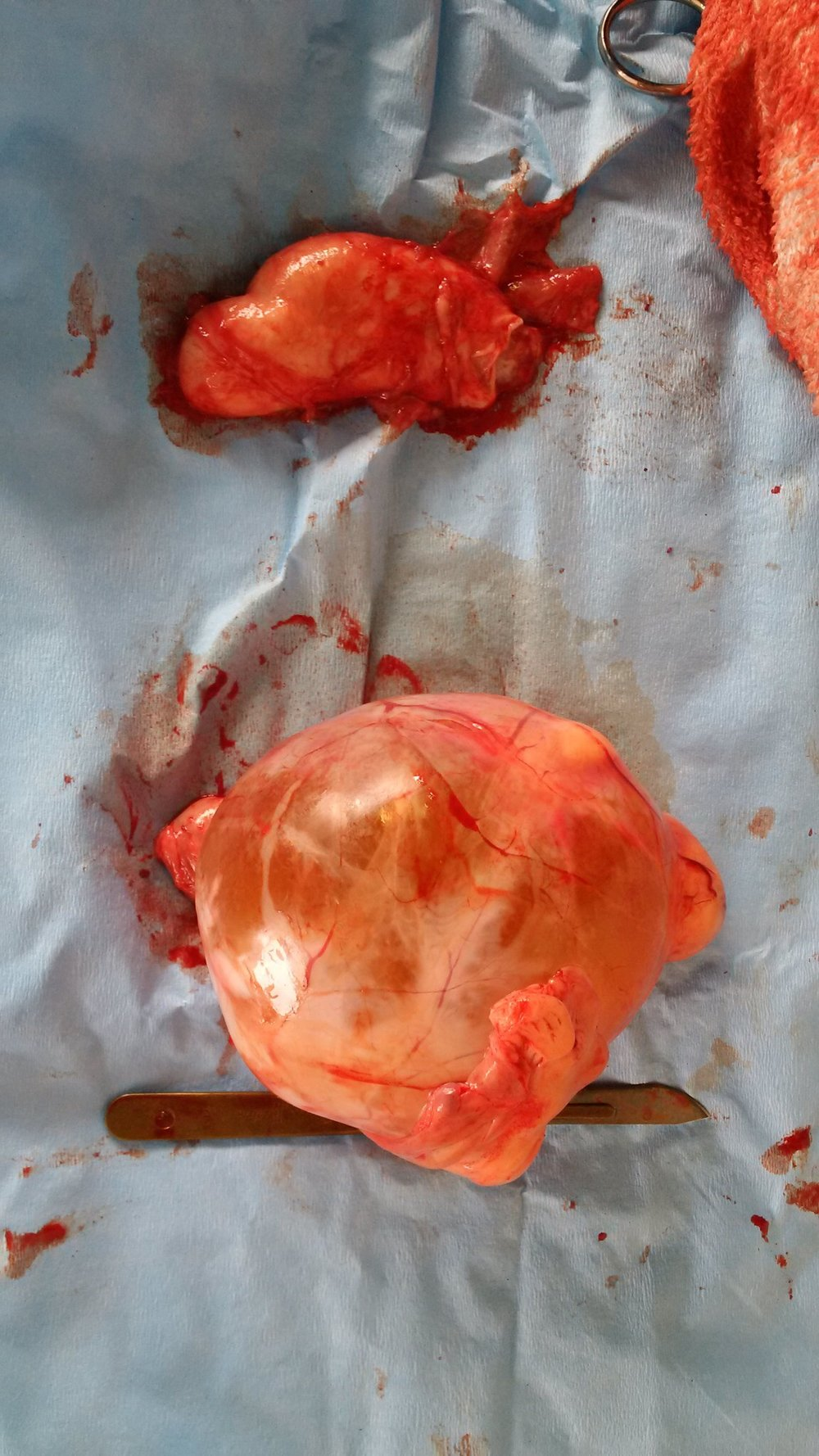 Jimmy's testicles - one tiny and one huge - were found to both be abnormal
