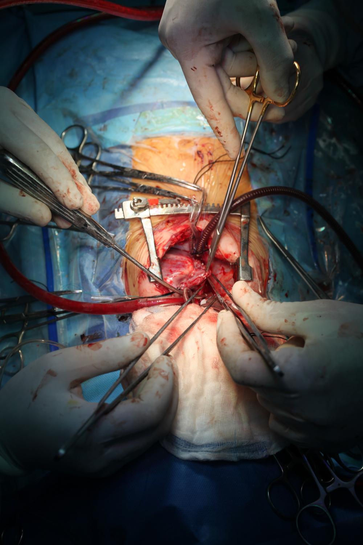surgery overview-1.JPG