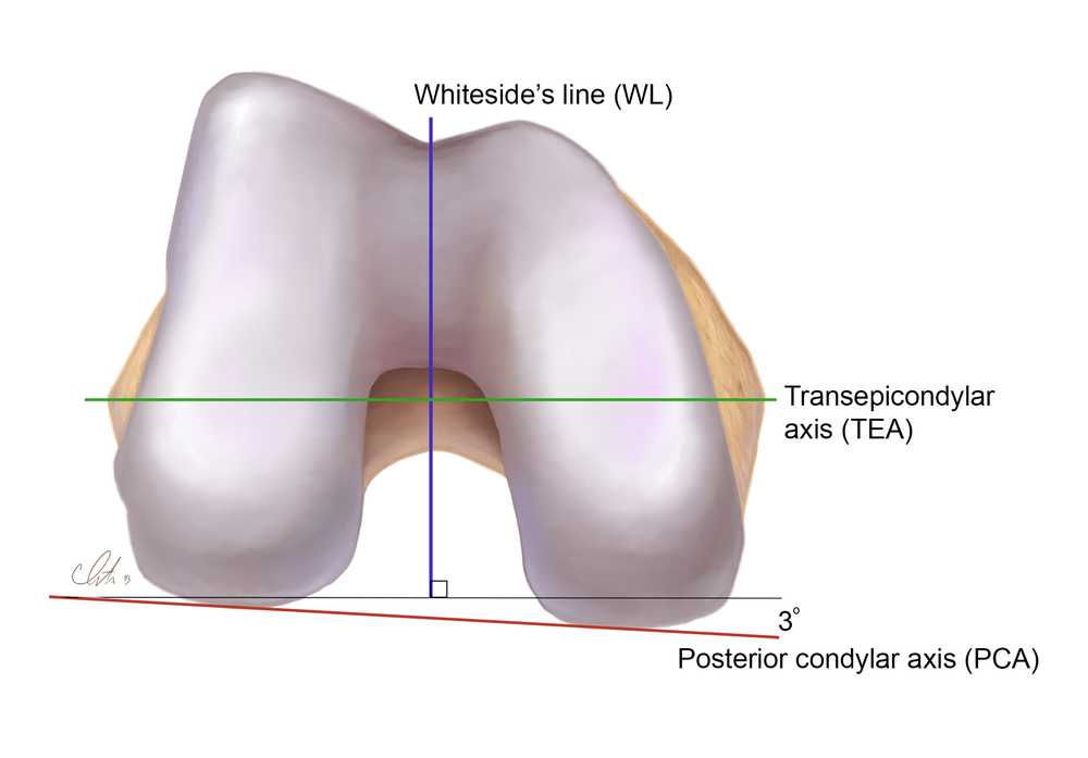 Geometry of the Distal Femur