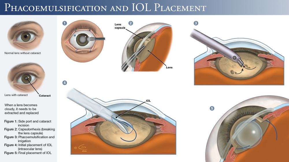 Phacoemulsification and IOL Placement