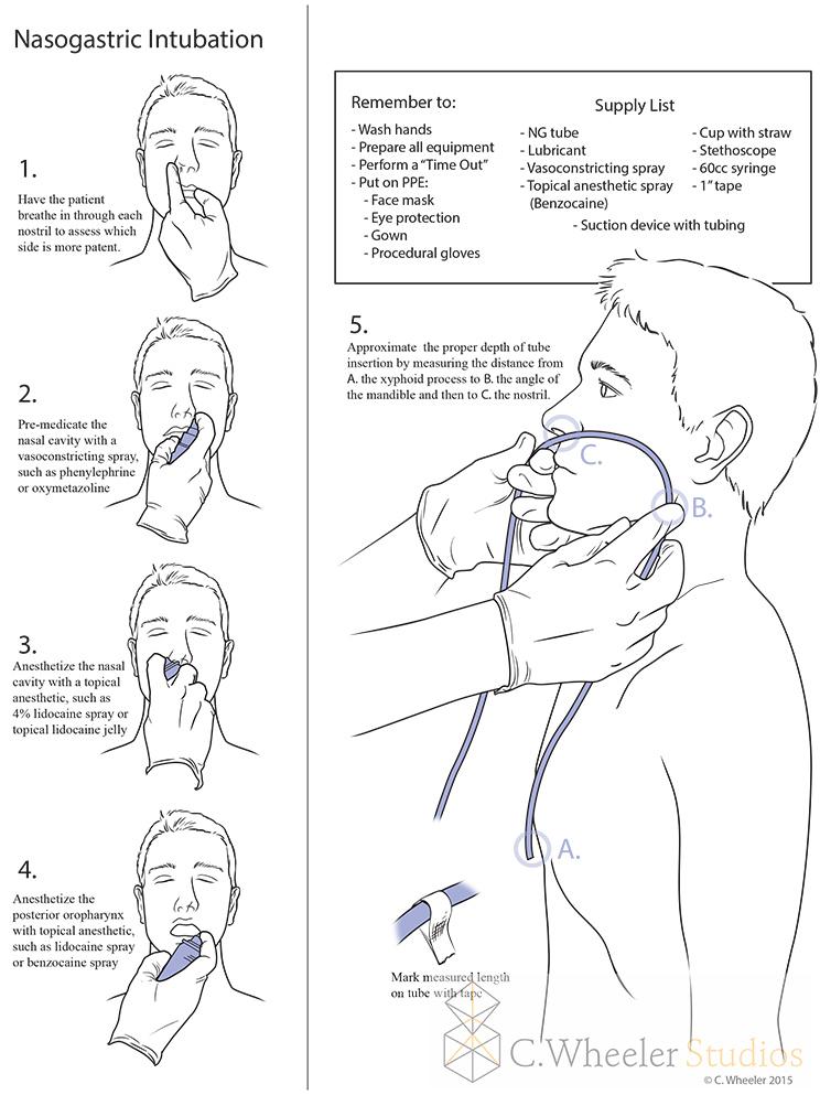 Nasogastric intubation, 2015