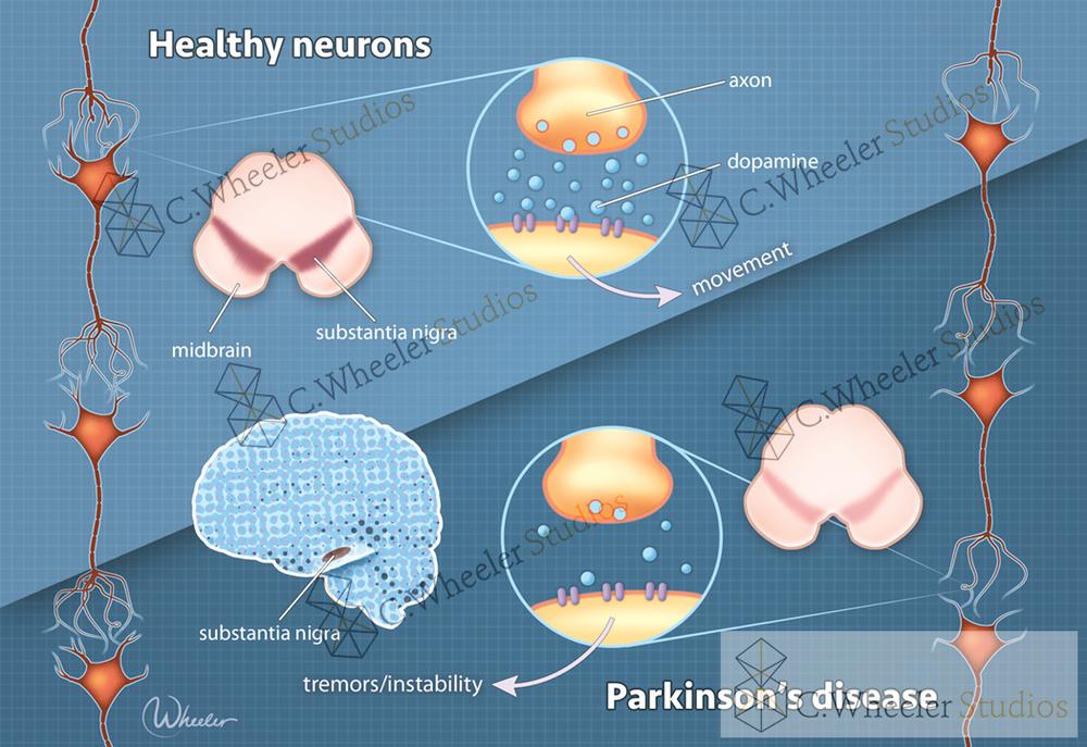 Parkinson's disease, 2017