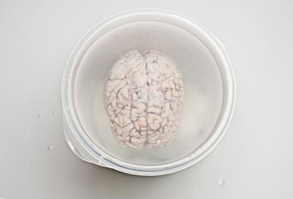 Patient H.M.'S Brain being prepared for slicing