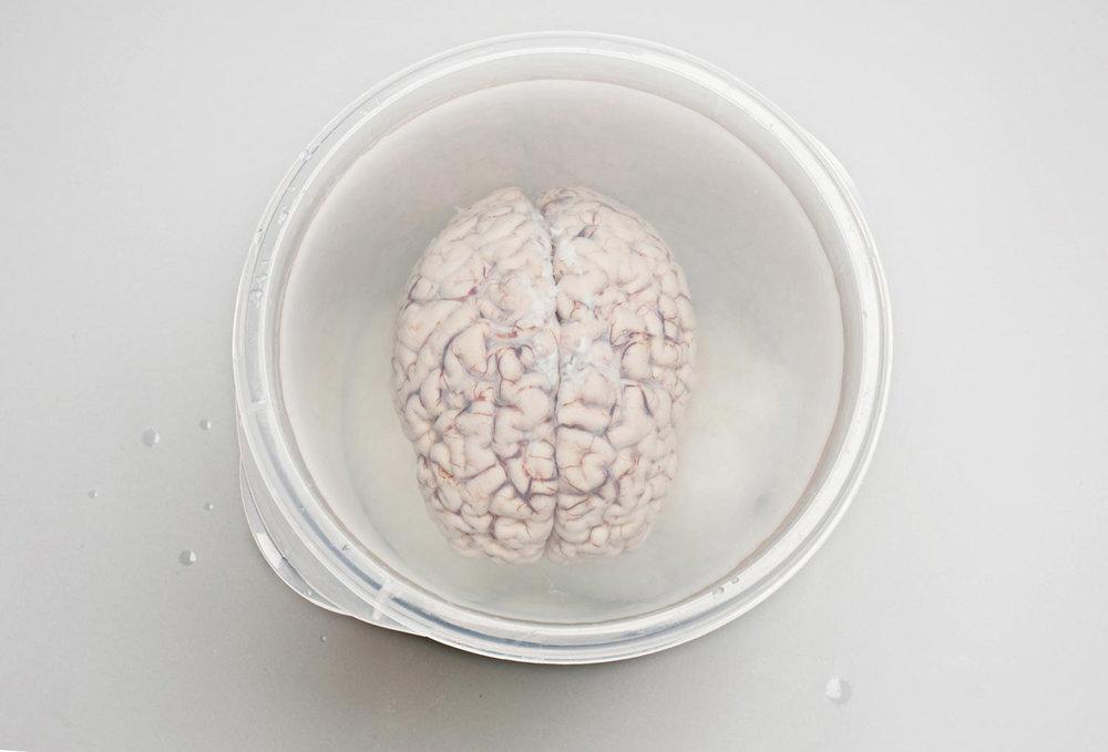 Henry Molaison's Brain, San Diego, California, 2009