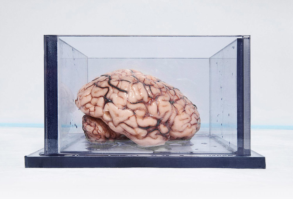 The most studied brain in science at the Brain Observatory