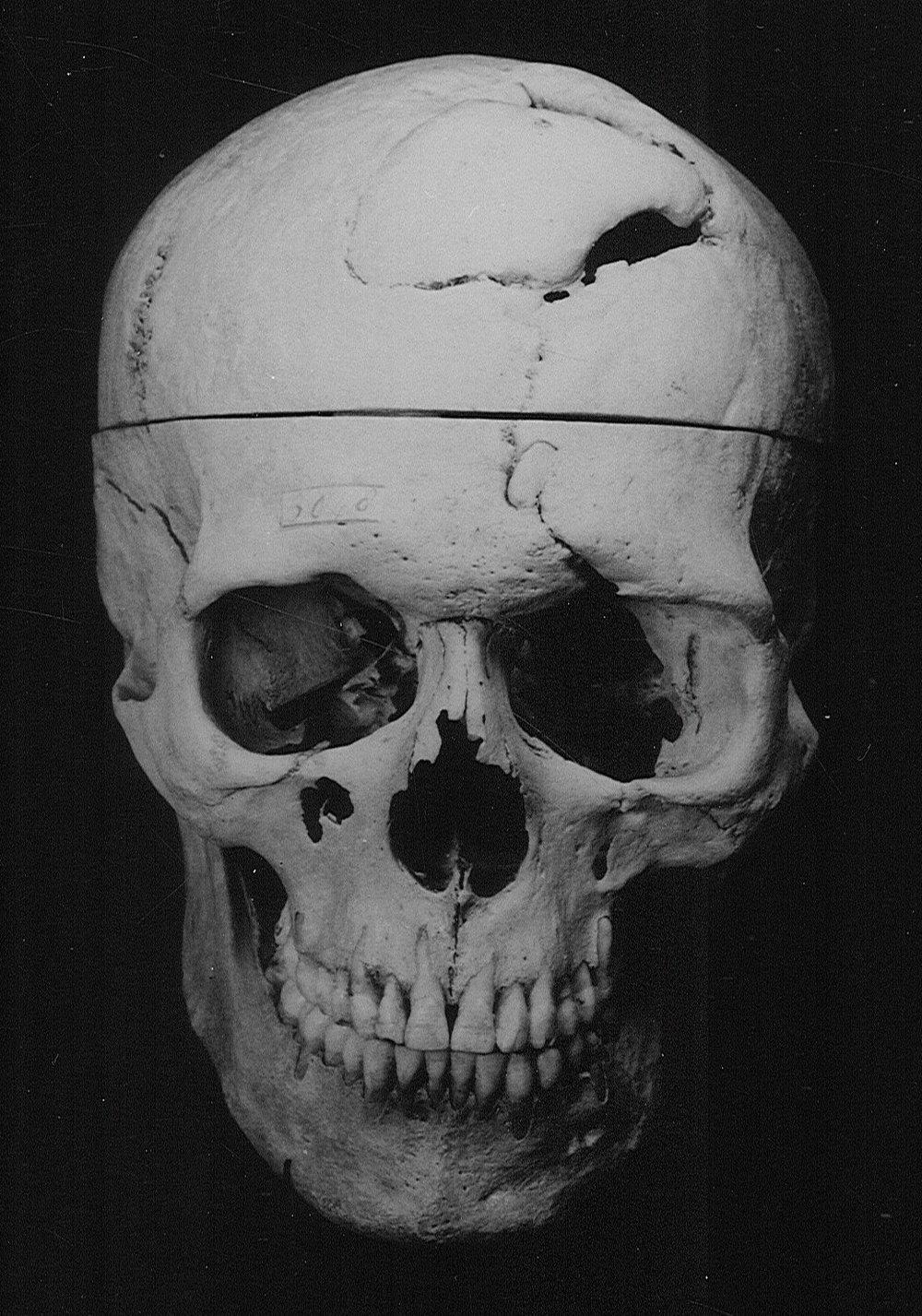 Gage.Skull_frontview.jpg