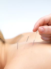 Accupuncture San Diego