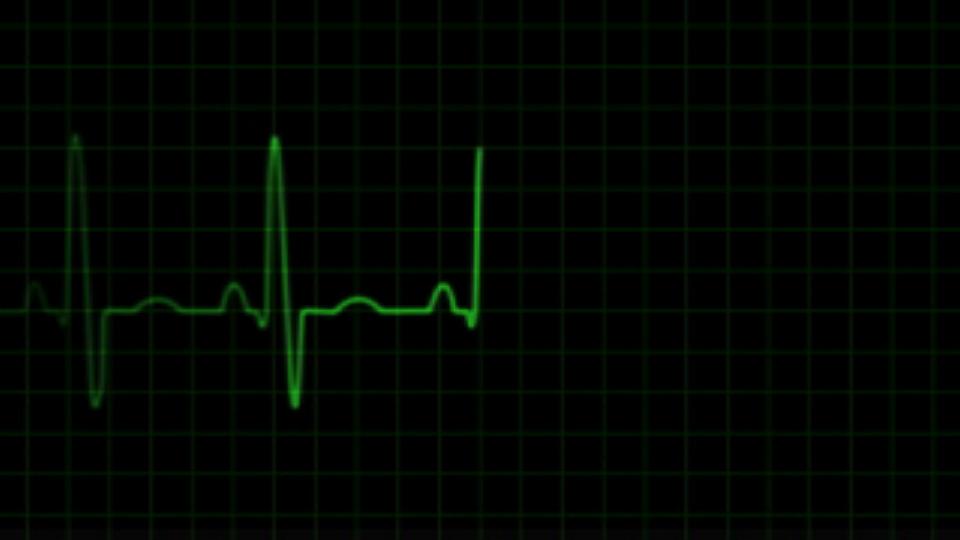 ecg heart trace.jpg