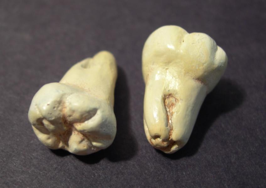 wisdom teeth, 2007