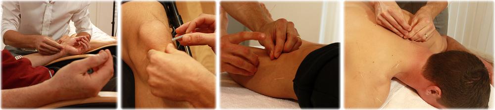 Acupuncture Testimonials