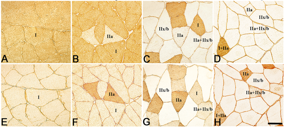 Alkaline Myosin ATPase Staining. Sections are paired top to bottom: A-E, B-F, C-G, D-H. Unilateral Muscle Overuse Causes Bilateral Changes in Muscle Fiber Composition and Vascular Supply (http://dx.doi.org/10.1371/journal.pone.0116455).