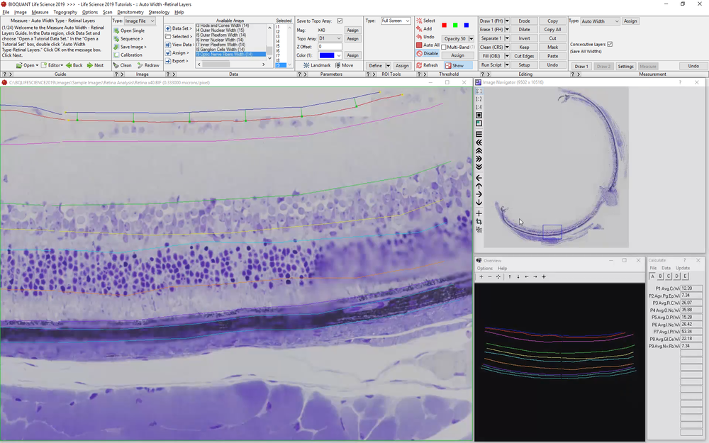 Retinal Layer Thickness