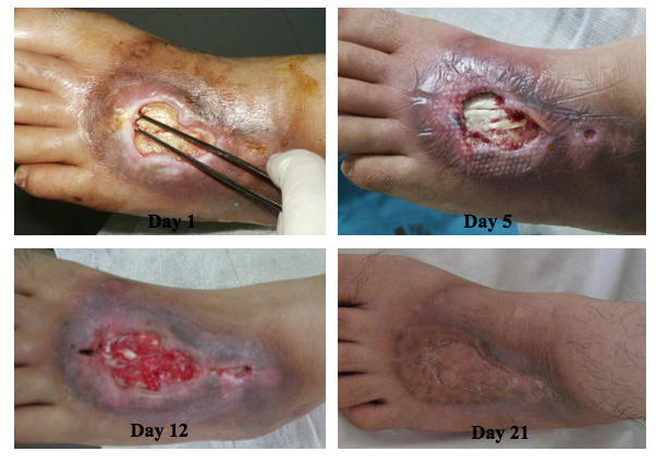 CLSC treatment to heal a full thickness chemical burn with exposed tendons