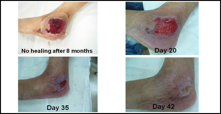 CLSC treatment and recovery of a chronic ulcer in a patient with Haemophilia A