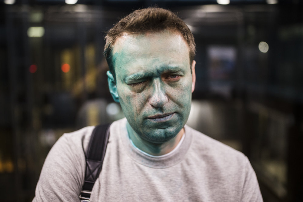 Alexey Navalny, Russian opposition leader and presidential contender, his face splashed with a green liquid and acid after a pro-Kremlin activist's attack, looks into the camera on a way back to his office from the hospital in Moscow