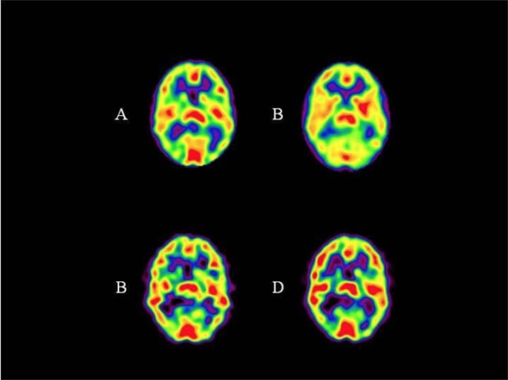 Consecutive pictures of a brain on meditation - The longer he meditates, the more he