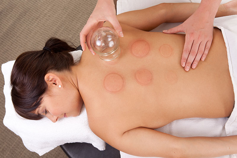 cupping photo.jpg