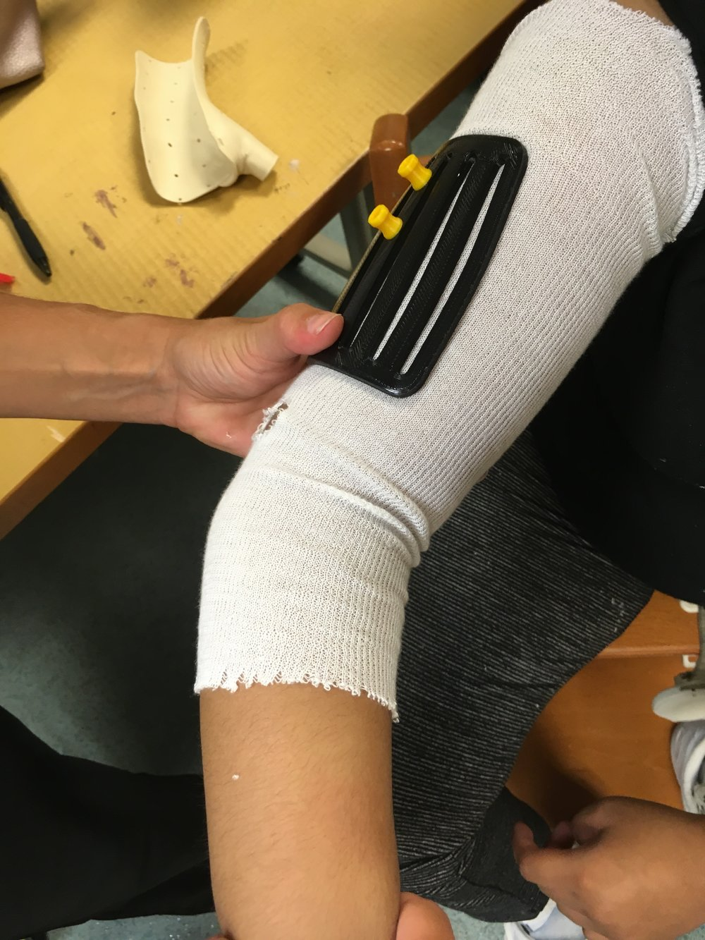 Creating a new device for the upper extremity in patients with cerebral palsy... in process... - Dr. Chu is creating an innovative device for neuromuscular disorders in cerebral palsy patients!