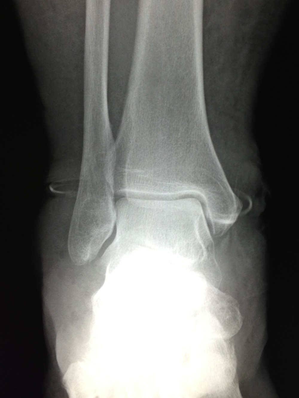 X-rays were taken and it looks like there is a halo or ring around the ankle