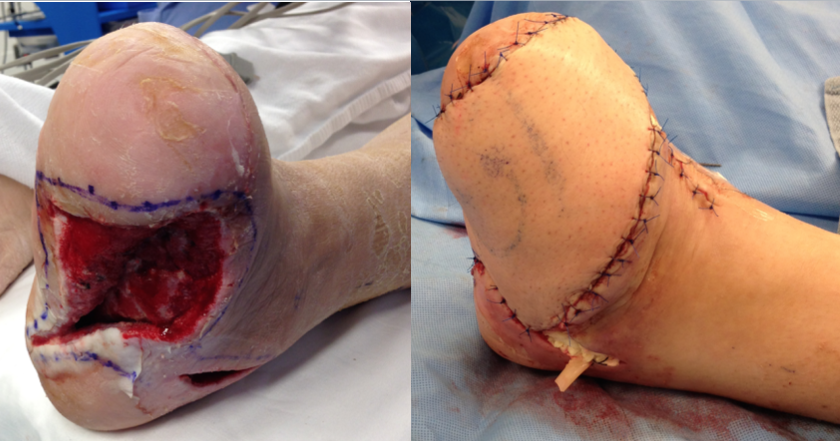 Pre-operative planning, all chronic non-viable tissues were cut out (outlined by the blue markings), often making the wound bigger than before. It is necessary to remove anything that may impede healing. A free flap, taken from the thigh, was then performed to close the wound. The donor site was able to be closed primarily even in a flap this size.