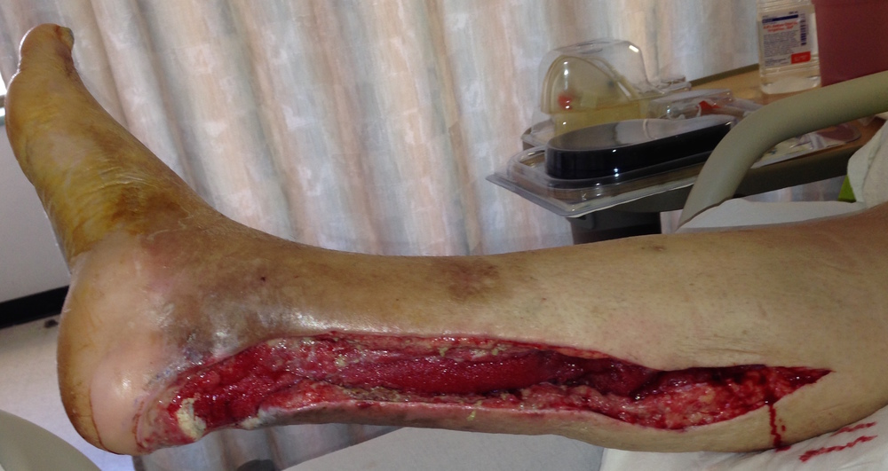 After several surgeries to clear the infection, a large wound remained