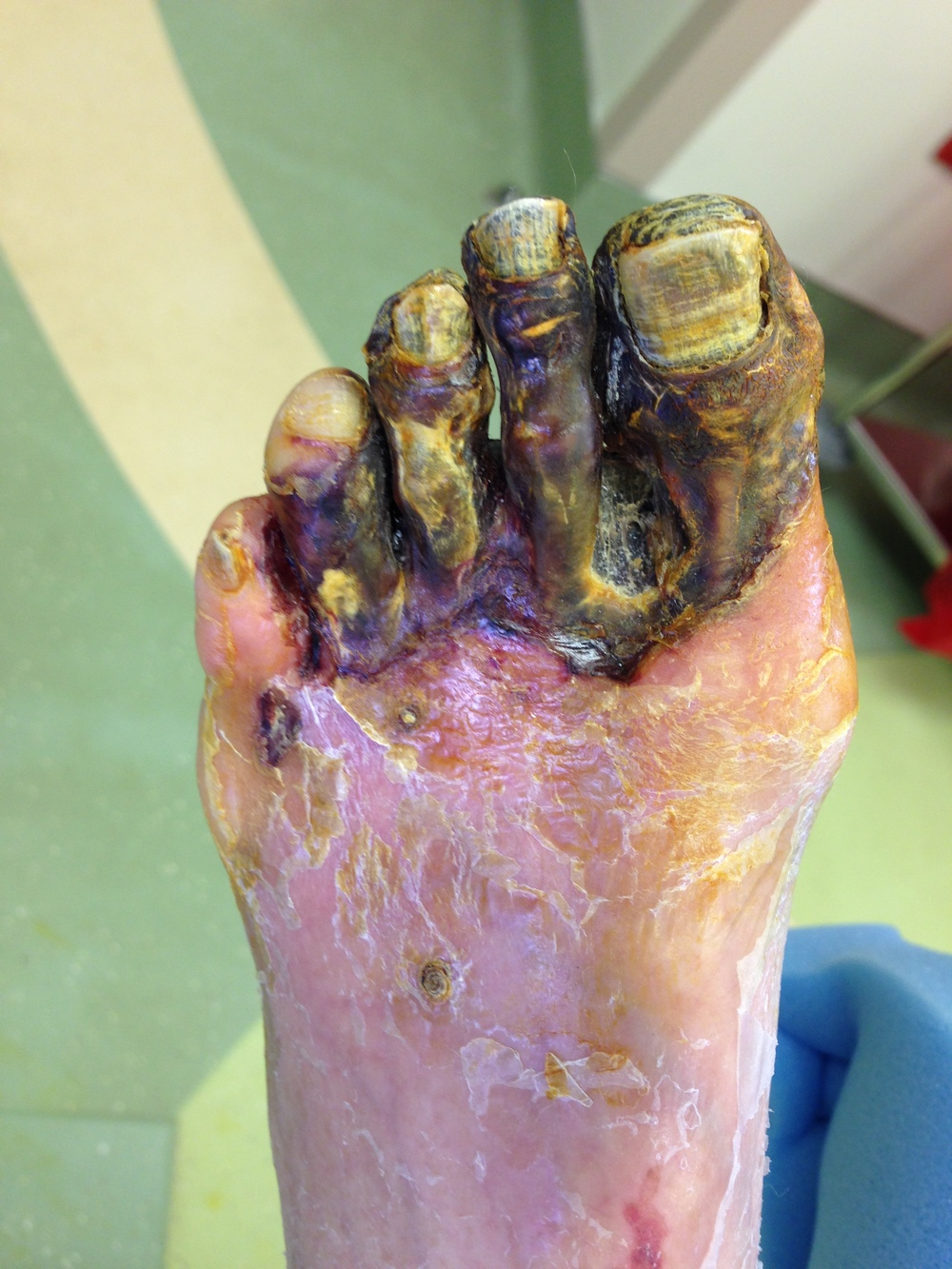 A patient with advanced peripheral vascular disease