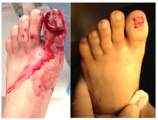 Apologies for the low quality picture, I'm not too photo-editing savvy. Above left is at presentation, the big toenail is loose and xrays showed the tip on the bones were broken into many little pieces. The right is him all cleaned up, my favorite thing to do...cleaning!