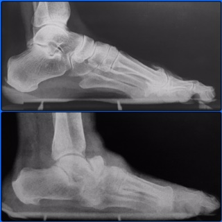 The top picture is of a patient without the described condition but is here for comparison. The bottom picture is the patient described. Here you can see irregularity of the bone structure, missing joint spaces, and an obliteration of bony architecture at the midfoot. The navicular is fractured and dislocated, an example of Charcot foot.