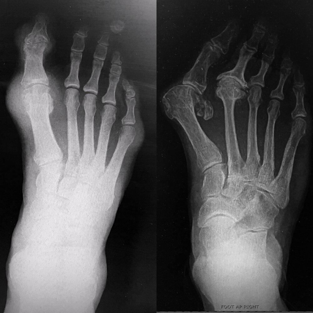 Left: gouty tophi shows on xray as a soft tissue density but the bone it not affected much (some squinting will produce bone cysts & bone erosion at the edges). Right: a bunion that protrudes in a similar manner to the tophi but it's a structural problem with the joint going the wrong direction.