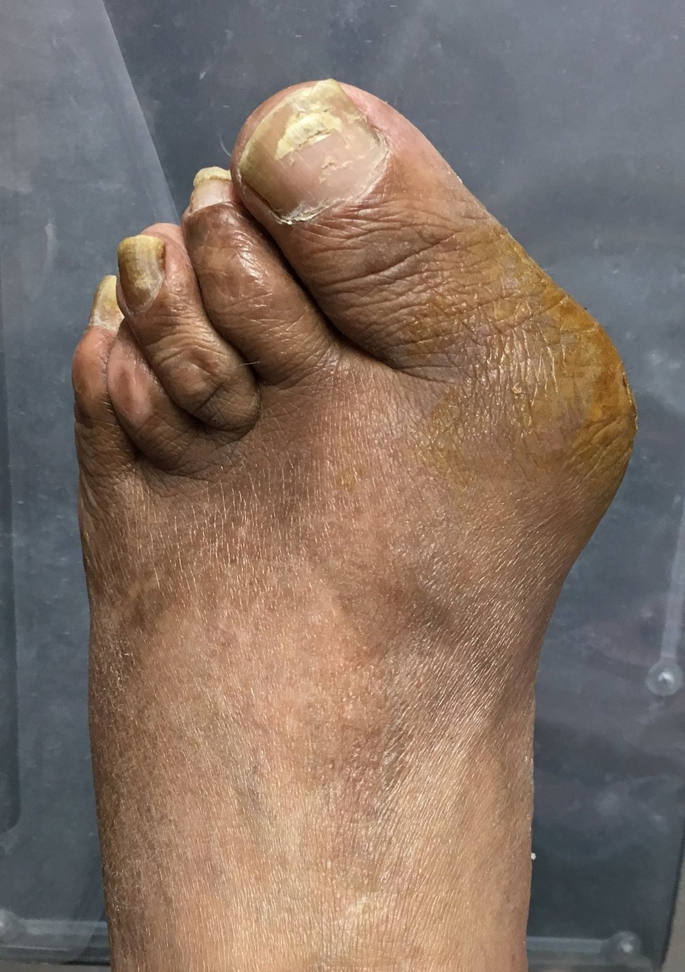 A rheumatoid foot with a severe bunion deformity and associated ulcer at the bony prominence. The brown color is betadine paint on the ulcer (not seen here).