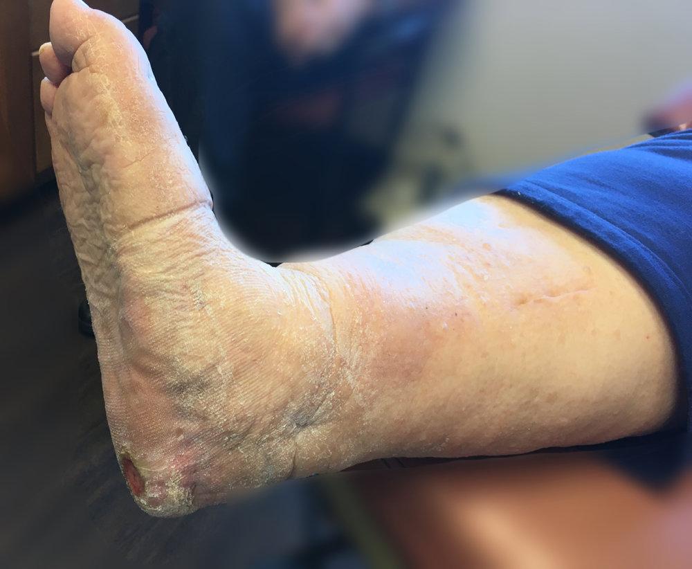 A heel ulcer from neuropathy