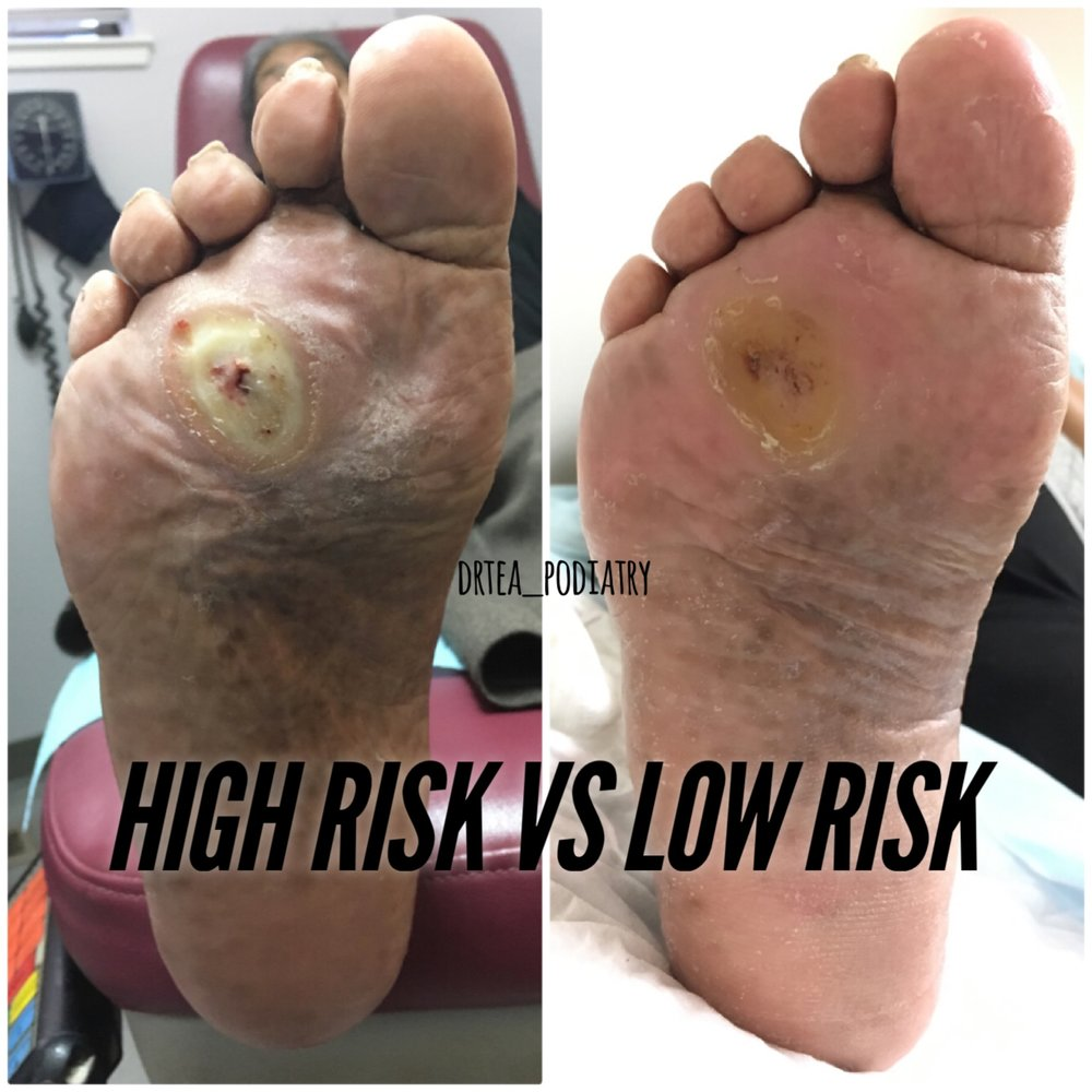 A callus builds up pressure causing the skin to break down. Shaving this down regularly and wearing appropriate diabetic shoes can prevent this callus from becoming an ulcer. Open wounds or ulcers are beginnings infections and amputations. Let's prevent that!