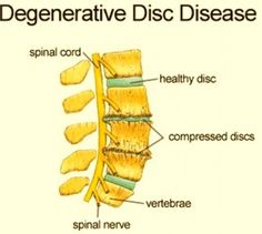 a554f61c999289525ce7dc98ef6e0e83--degenerative-disc-disease-knee-pain.jpg