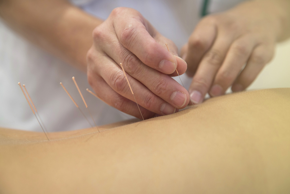 Acupuncture Victoria BC