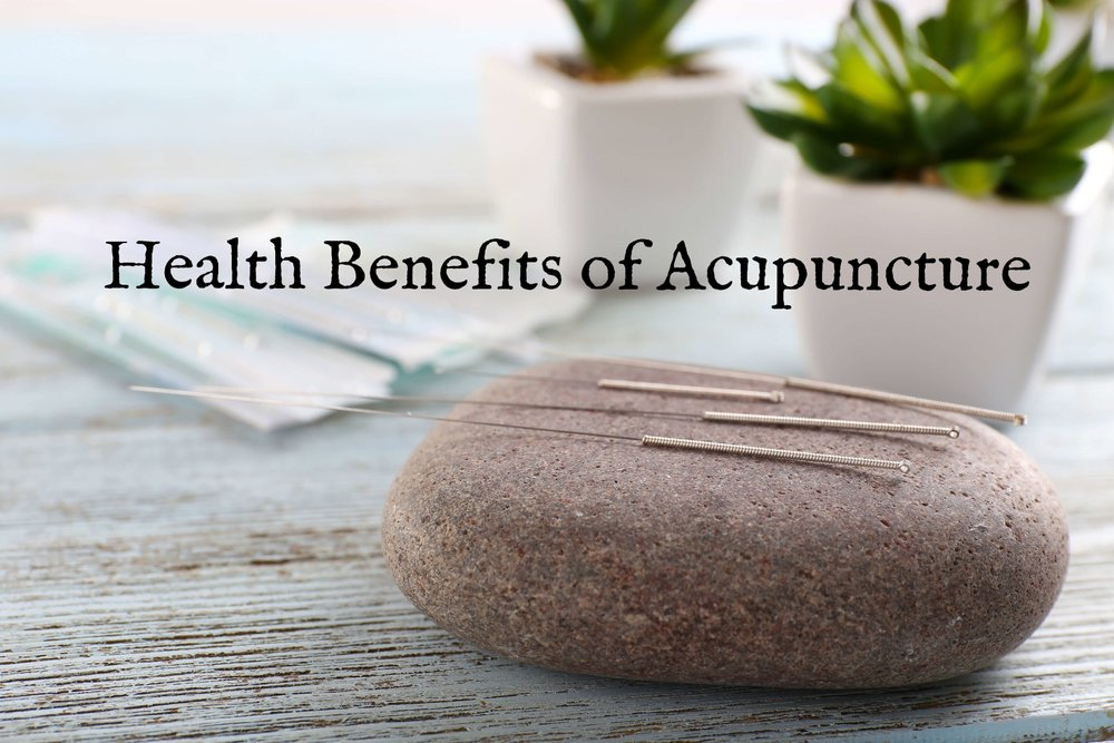 acupuncture-yyj