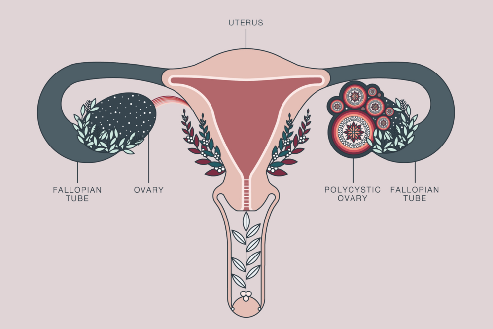 PCOS, polycystic ovarian syndrome, hormone imbalance, hormones, women's health, irregular periods, naturopath, naturopath victoria, naturopathic doctor victoris bc, naturopathic clinic victoria bc
