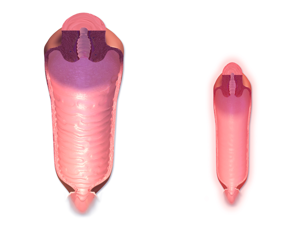 Vaginal canal: normal vs menopause