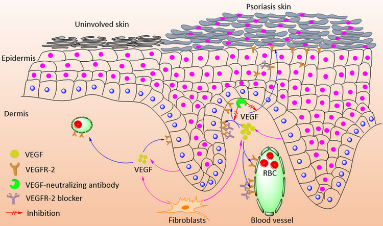 http://www.discoverymedicine.com/Wei-Li/2014/09/targeting-vegf-vegfr-in-the-treatment-of-psoriasis/
